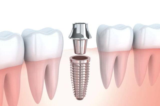 Što opravdava cijenu zubnih implantata?