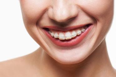 Zašto nošenje ortodontskog aparata nije samo stvar estetike
