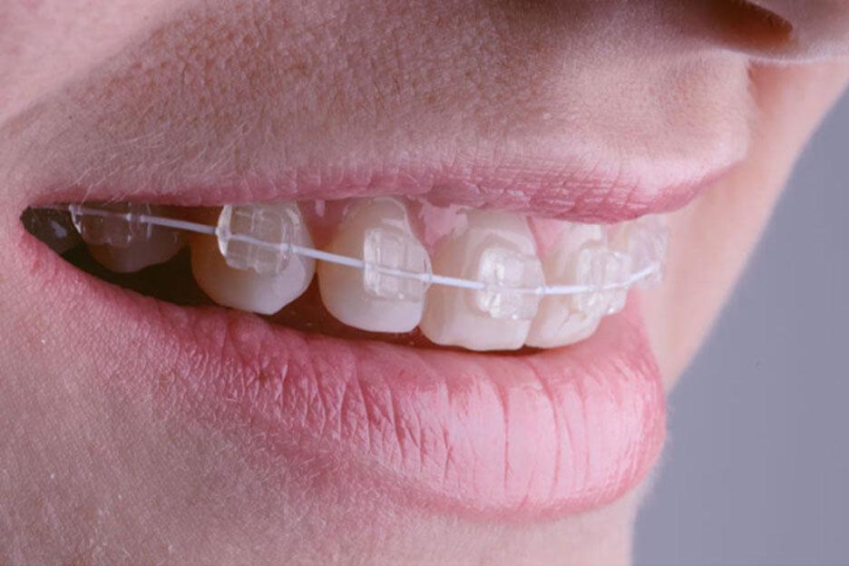 Sve što trebate znati o fiksnoj ortodonciji